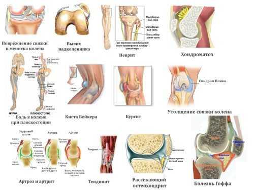 Что делать чтобы колени не болели Суставы